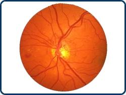 Cukorbetegség és a szem