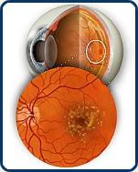 Időskori látóhártya elfajulás