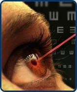 Lézeres látáskorrekció