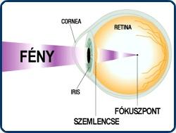 rövidlátás fáj az egyik szem rövidlátás 20 dioptria